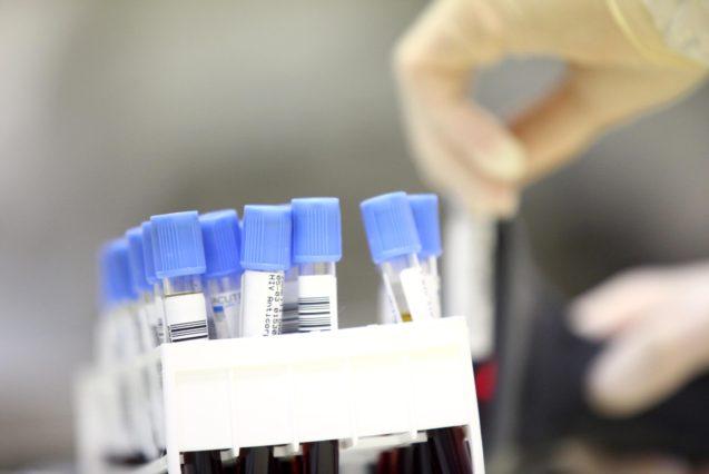 I servizi del laboratorio analisi